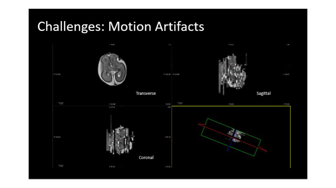 Fetal MRI with motion artifacts